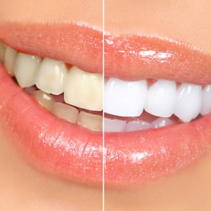 teeth whitening Mansfield TX