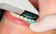Mansfield Family Dentistry uses Cadent iTero
