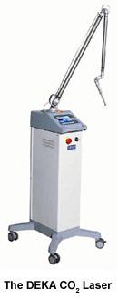 DEKA CO2 Laser
