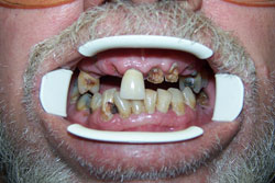 implants-bridges-crowns-before-2