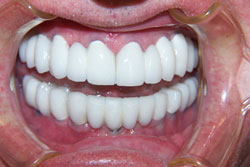 implants-crowns-bridges-after-4
