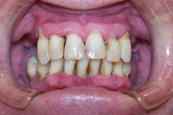 implants-crowns-bridges-before-4